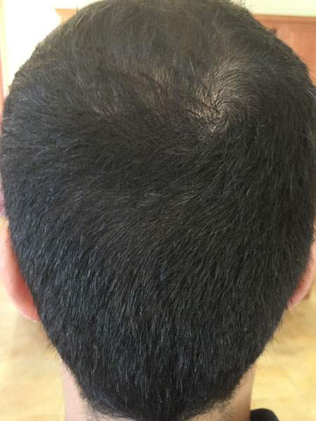 Donor area 30 days post FUE Hair Transplant by Dr. Yazdan.