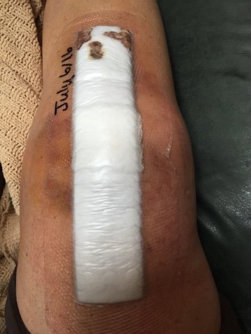 post surgery knee, www.moderngillie.com