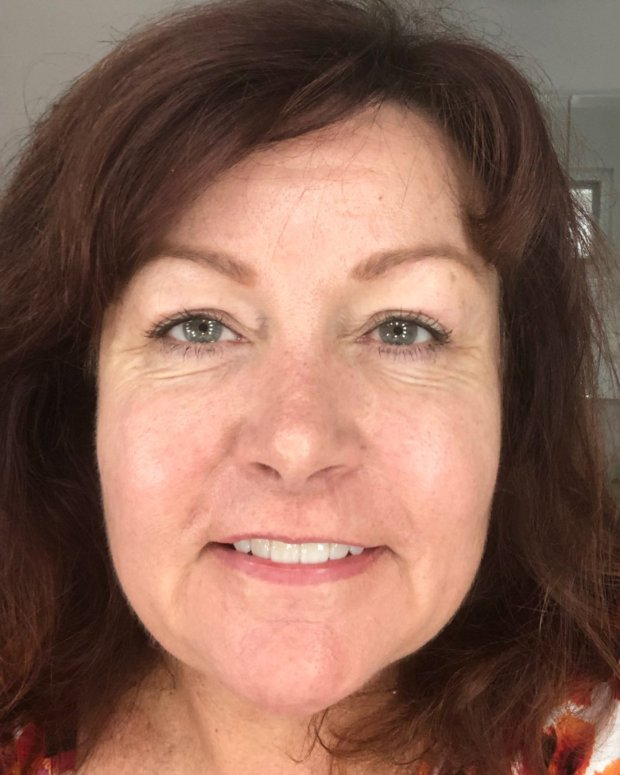 face at 6 weeks post laser skin resurfacing