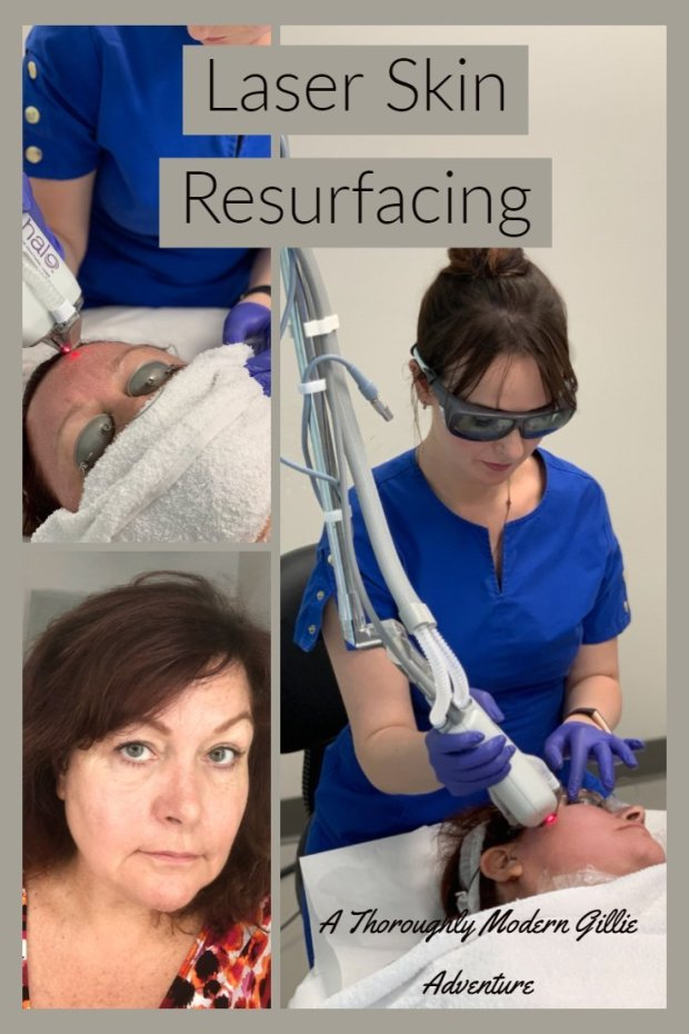 Laser Skin Resurfacing, A Thoroughly Modern Gillie Adventure www.moderngillie.com #laserskinresurfacing #halolaser #fractallaser #8westclinic #vancouvercosmeticclinic #antiaging