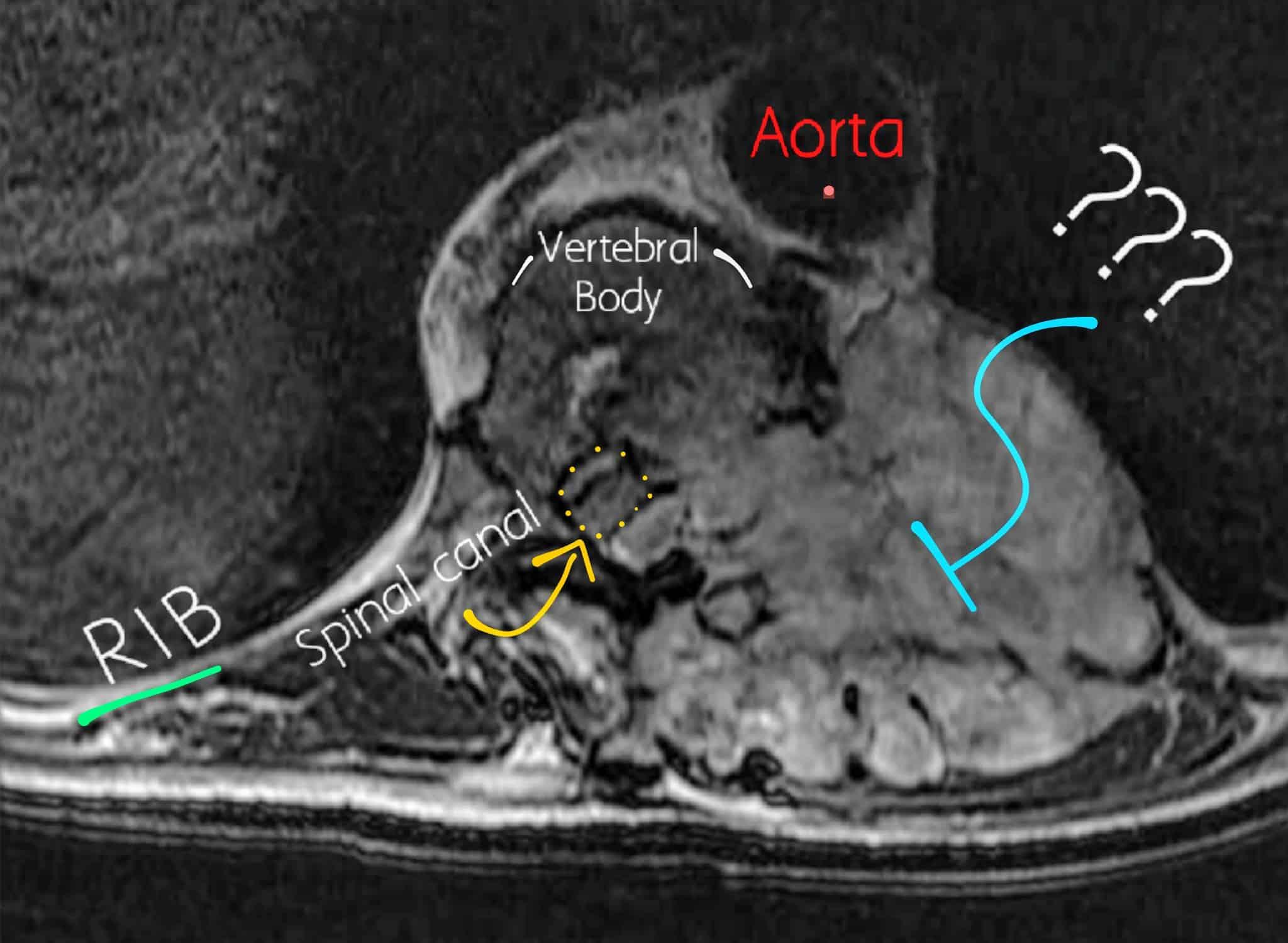 Thoracic Axial MRI Angiosarcoma