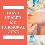 How I healed my hormonal acne