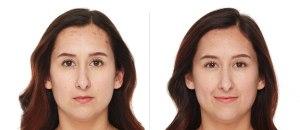 How I Healed My Hormonal Acne