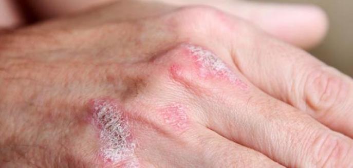 نتيجة بحث الصور عن تعرف على طرق علاج الصدفيه بالاعشاب الطبيعيه