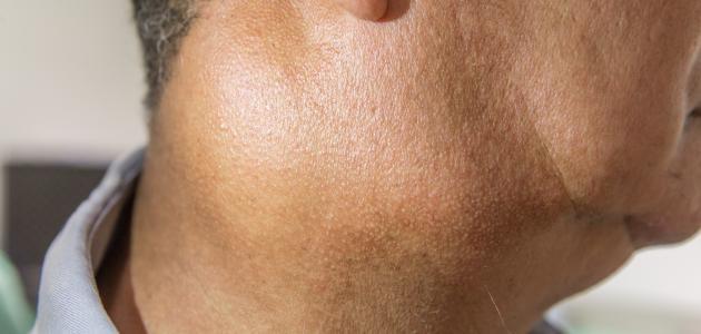 ما هي أعراض التهاب الغدة اللمفاوية موضوع