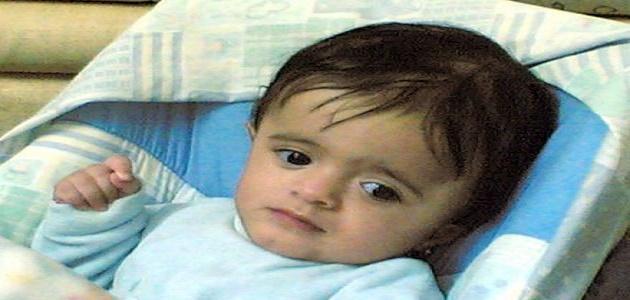 ضمور المخ عند الأطفال وعلاجه موضوع