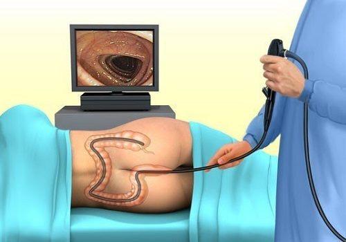kanapės veikia erekciją masažo rūšys erekcijai