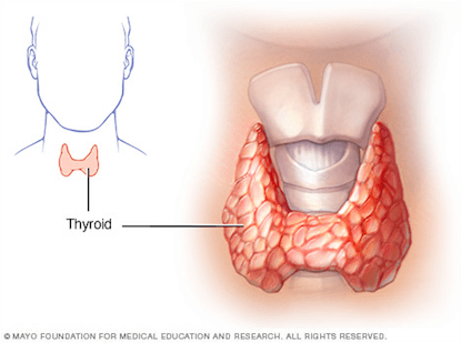 Thyroid3.png