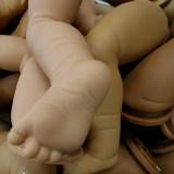 幼兒o型腿矯正方法與預防