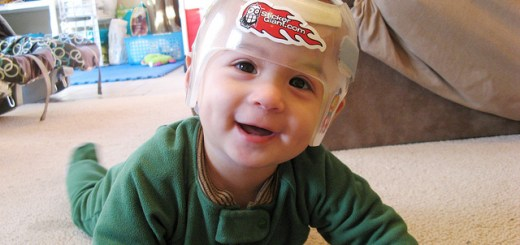 寶寶頭型何時固定 如何矯正?