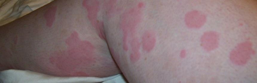 蕁麻疹原因與治療方法