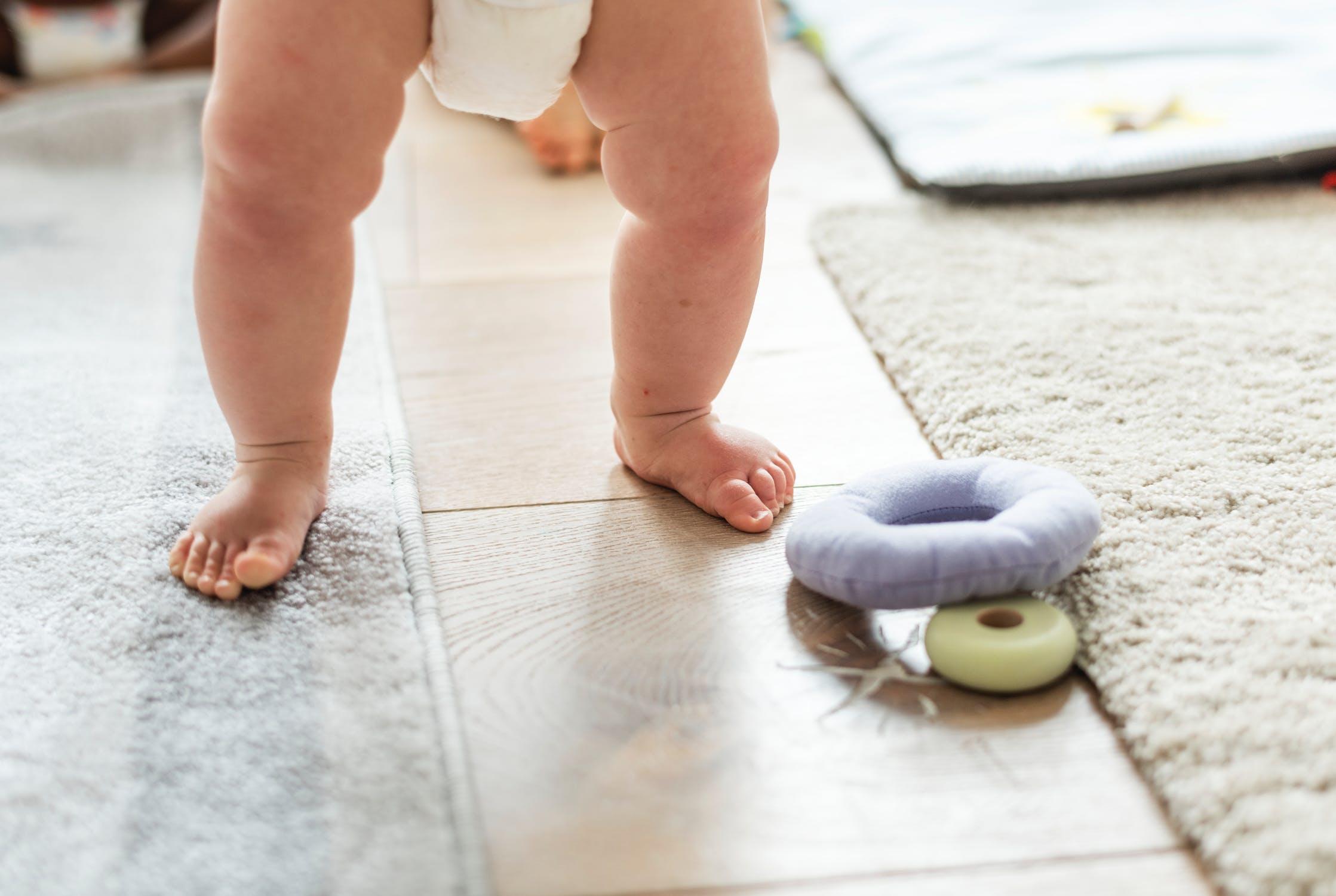 寶寶O型腿怎麼辦? 要怎麼矯正呢?