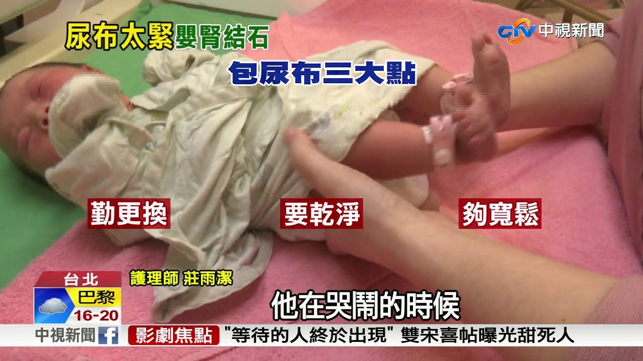 嬰兒尿布包太緊居然長出腎結石?!