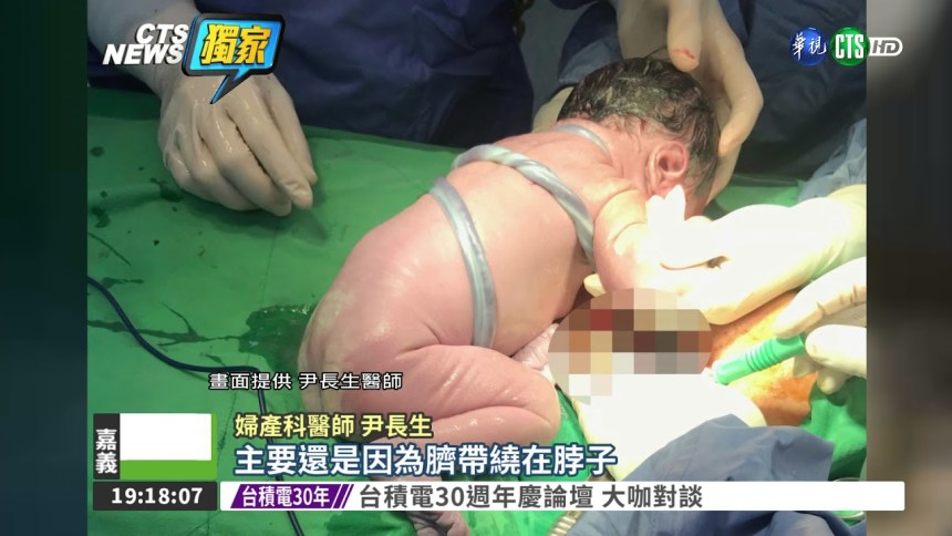 臍帶繞頸三圈 剖腹救女嬰一命