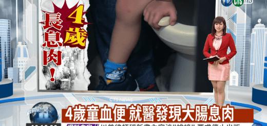 小孩血便原因?! 一名四歲童血便就醫後診斷出大腸息肉