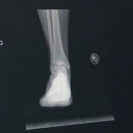 dancer's fracture