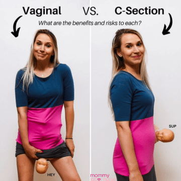 C Section vs Natural Birth, C Section vs Natural Birth: Which is the Better Option?