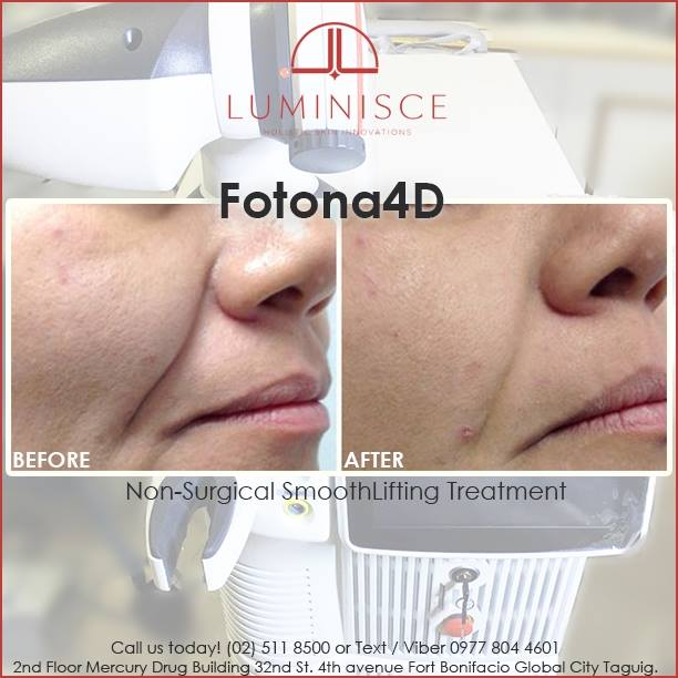 Fotona 4D by Luminisce for Aging Skin