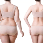 Weight Loss Vs. Fat Reduction—A Closer Look at How Fat Reduction Works