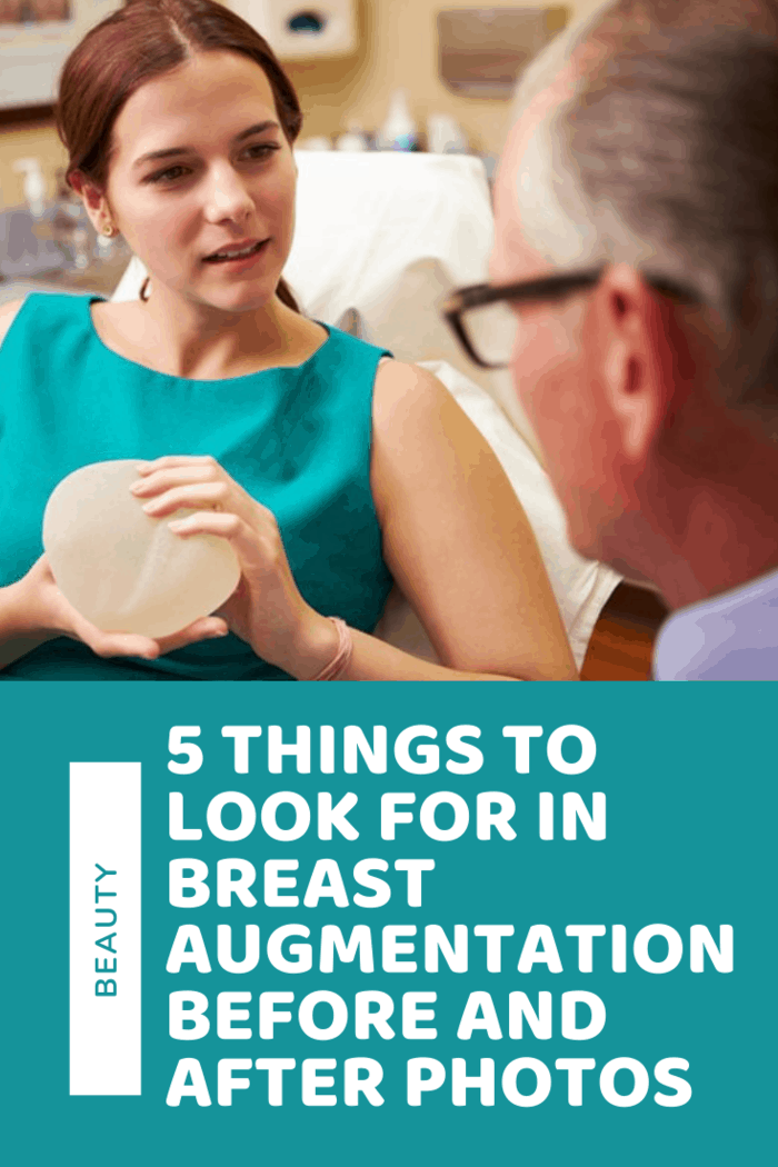 There are five important things that you should take care to look for when you're browsing breast augmentation before and after photos