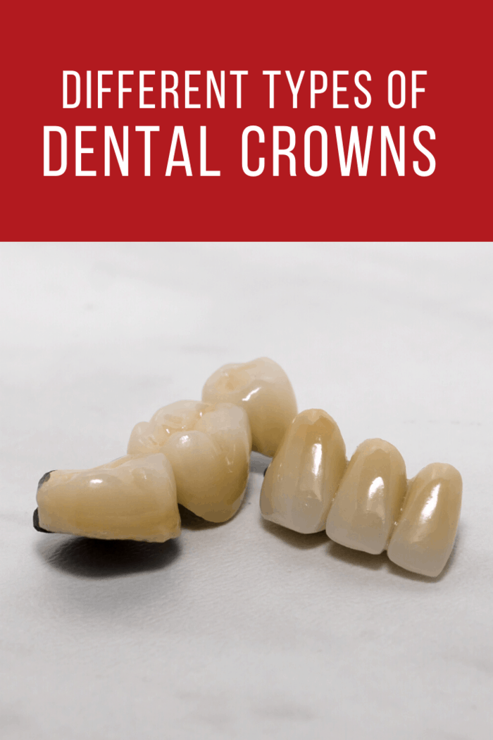 The external layer of the dental crown is made out of porcelain and this ensures that the patient's teeth appear to be natural.