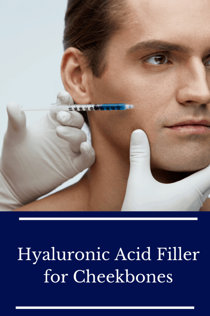Hyaluronic acid can be used to emphasize and accentuate your cheekbones.