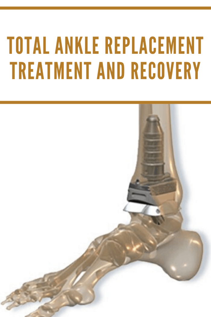 Ankle Arthroplasty is also referred to as total ankle replacement surgery.