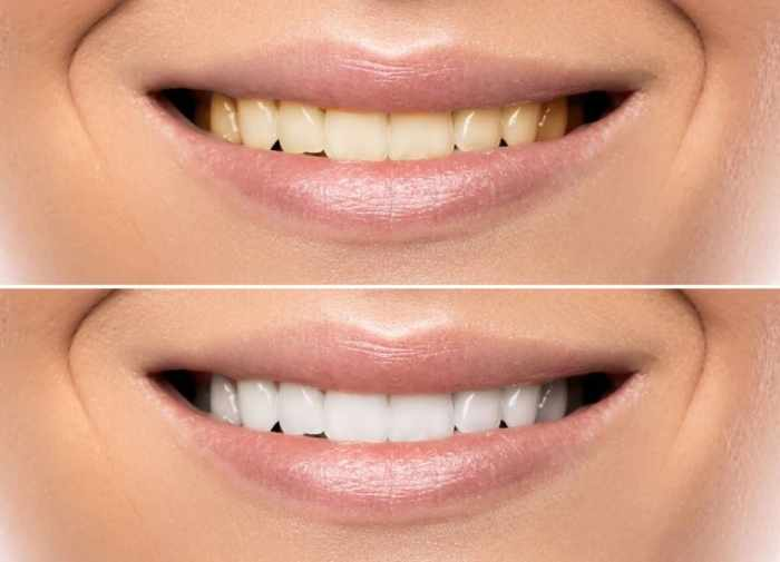 We'll discuss a couple of tried and true whitening methods, as well as how to get whiter teeth instantly.