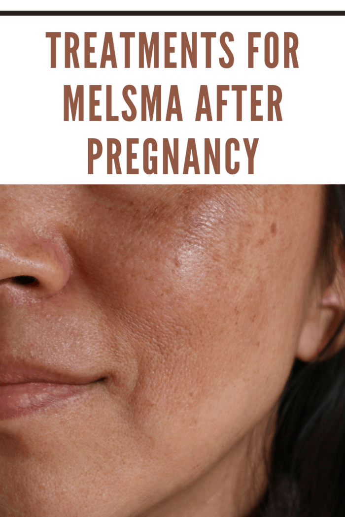 You can protect your skin during the day while lightening the Melasma spots.
