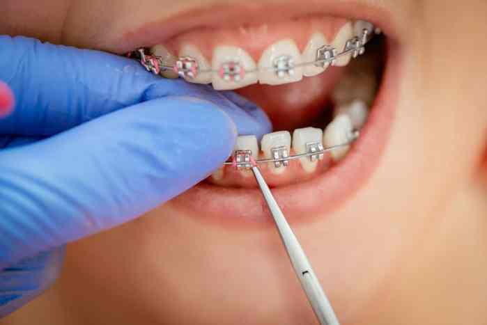 orthodonitist putting rubber bands on brace brackets in child's mouth