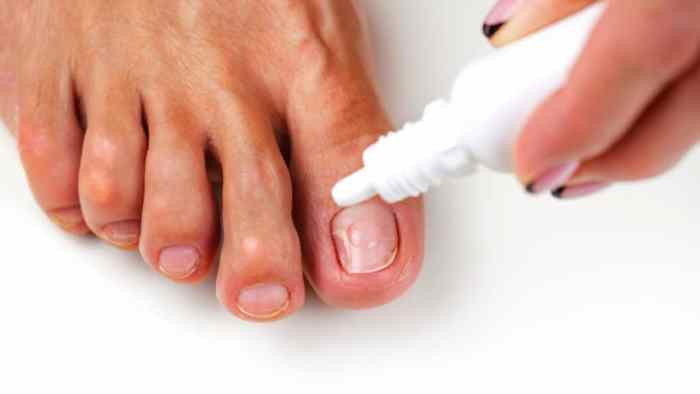 Fungus of the nail plate (onychomycosis). Nail Care, Nail Fungus Treatment, A healthy foot, beautician applies a care product concept of treating nail fungus during pregnancy
