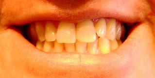 close up of teeth after evoraplus