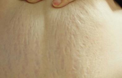 妊娠線が胸にできるのはなぜ?