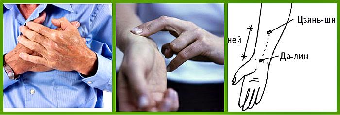 Точечный массаж при аритмии сердца
