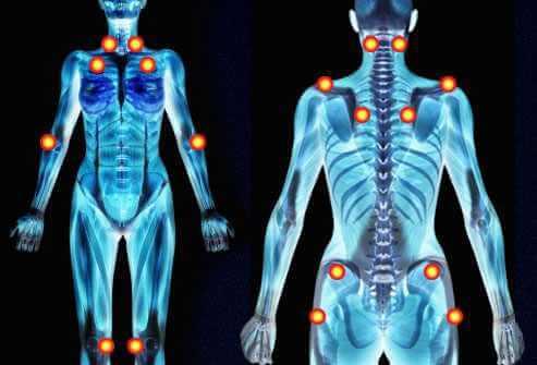 la fibromyalgie maladie du siècle
