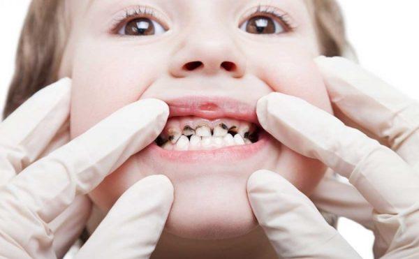 أسباب تسوس الأسنان لدى الأطفال