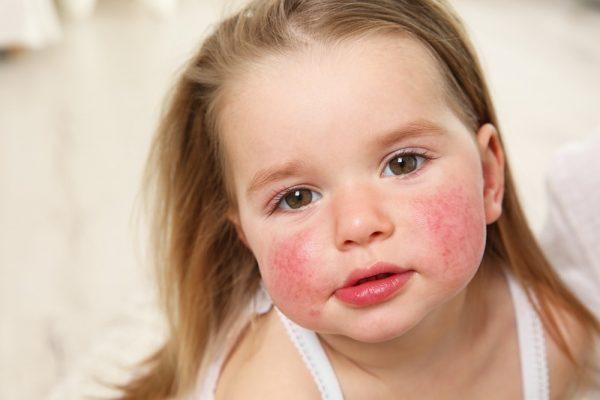 إحصائيات حول شيوع حساسية الطعام لدى الأطفال