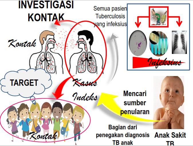 Investigasi Kontak