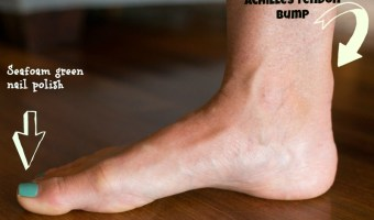 The Running Injury I Haven't Yet Mentioned. {& What I'm Learning From it.}