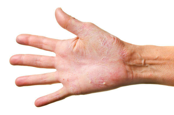 Allergic Reaction Rash On Hands Anyone who develops a rash,