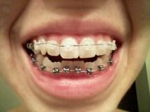 beginning-braces