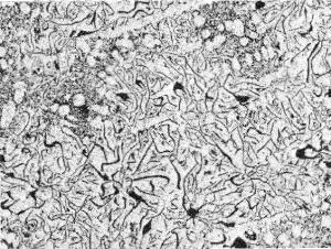 図2.8.4_ねずみ鋳鉄の異常組織