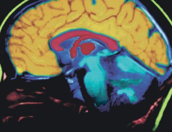 The Brain and Body Connection — Info from the Alzheimer's Association