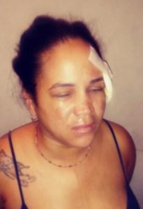Santiago: Mujer mata padrastro en San José y La Mina