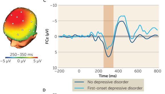 reward-response-and-risk-of-depression