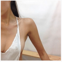 The focus here is on an extremely thin arm. There is no face to add humanity to the arm and breast.
