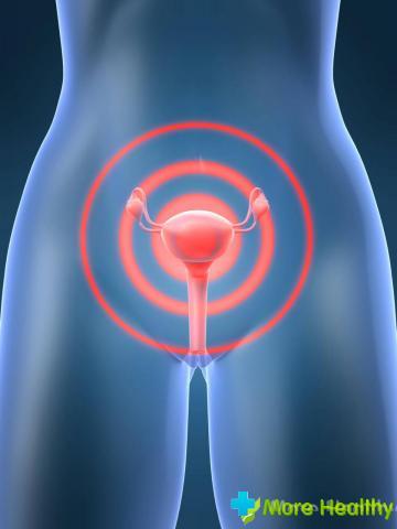 Простыла болит низ живота чем лечить. Простуда по-женски: что делать, если застудила органы мочеполовой системы. Альтернативные методы лечения