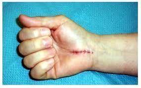 Imagen de la Cicatriz habitual del tratamiento del Síndrome del túnel carpiano por cirugía