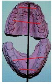 Arcadas dentales asimétricas por el hueso y la posición dental causadas por la masticación unilateral izquierda (MUI)