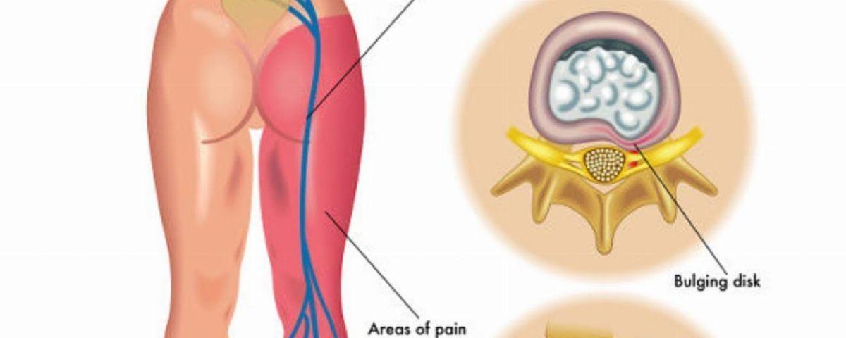 Nervio ciático y esquema de hernias discales